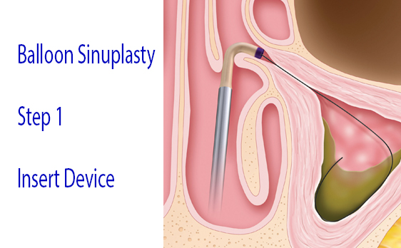 Graphic of balloon sinuplasty step 1