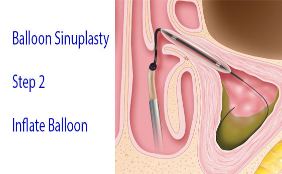 Graphic of balloon sinuplasty step 2