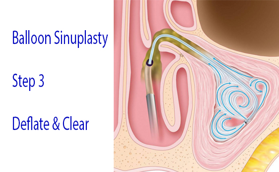 Graphic of balloon sinuplasty step 3