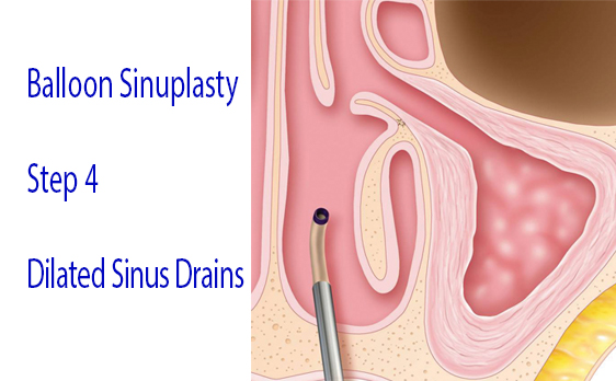 Graphic of balloon sinuplasty step 4